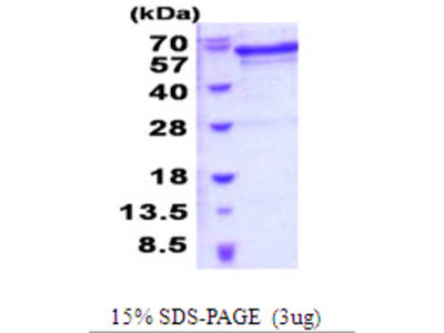 JMJD6 Jumonji Domain Containing 6 Human Recombinant Protein