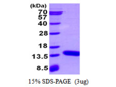 S100A3 S100 Calcium Binding Protein A3 Mouse Recombinant Protein