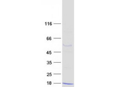 S100A5 S100 Calcium Binding Protein A5 Human Recombinant Protein