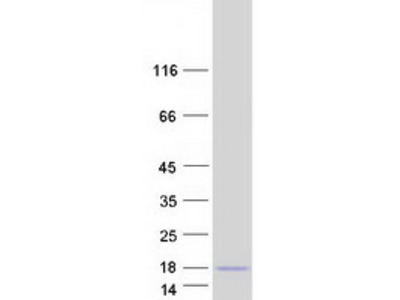 MIP-5 Macrophage Inflammatory Protein-5 (68 a.a) Human Recombinant Protein (CCL15)