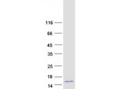 HCC-1 Human Recombinant Protein (CCL14) (66 a.a.)