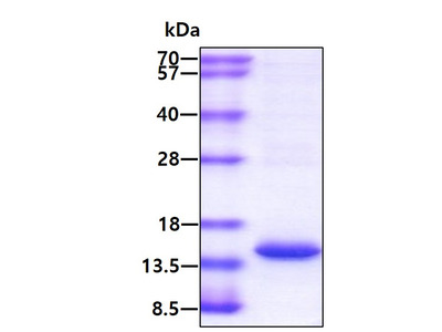 Human, Serum Amyloid A Human Recombinant Protein (APO-SAA1), His Tag