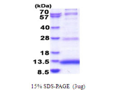 JTB Jumping Translocation Breakpoint Human Recombinant Protein