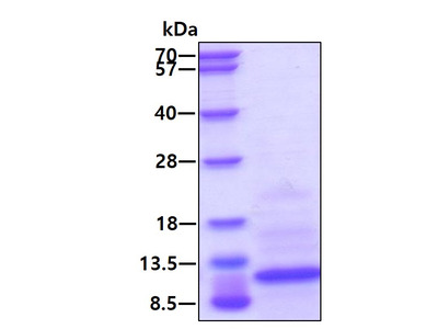 MIP-3a Macrophage Inflammatory protein-3 alpha (CCL20) Human Recombinant Protein, His Tag