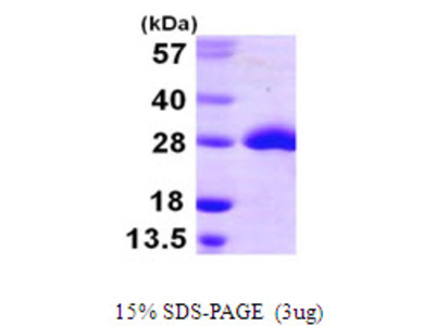 MSRA Methionine Sulfoxide Reductase A E.Coli Recombinant Protein