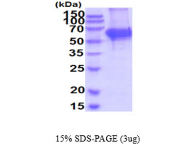 TH Tyrosine Hydroxylase Mouse Recombinant Protein