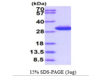 Human Sepiapterin reductase Recombinant Protein