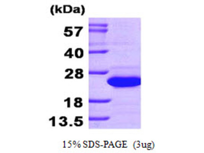 Human Diamine N-acetyltransferase 1 Recombinant Protein