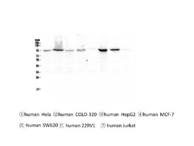 Anti-beta Catenin Picoband Antibody (monoclonal, 1F6)