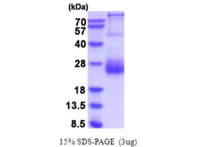 Human HAI-2 Recombinant Protein