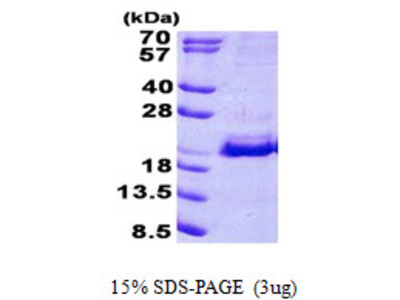 SRP19 Signal Recognition Particle 19kDa Human Recombinant Protein