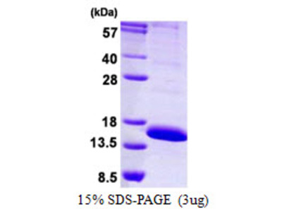 LAIR2 Leukocyte-Associated Ig-Like Receptor 2 Human Recombinant Protein