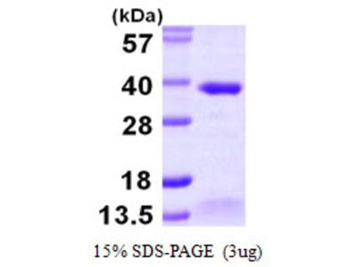 ALKBH2 ALKB Alkylation Repair Homolog 2 Human Recombinant Protein