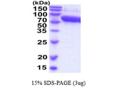 SERPINF2 Serpin Peptidase Inhibitor, Clade F Member 2 Mouse Recombinant Protein