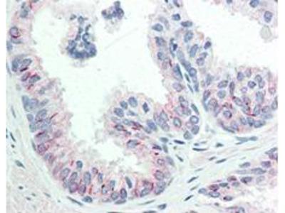 Anti-Akt phospho S473 Monoclonal Antibody