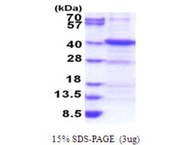 ANKRA2 Ankyrin Repeat Family A2 Human Recombinant Protein