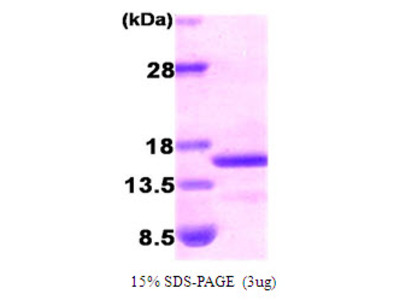 BNP B-type Natriuretic Peptide Human Recombinant Protein