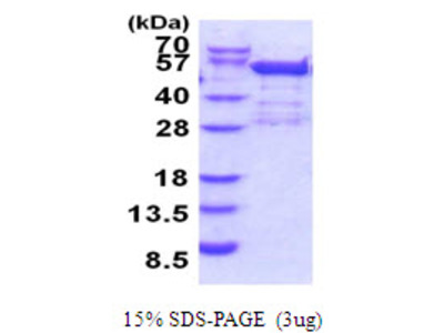 BRD2 Bromodomain Containing 2 Human Recombinant Protein