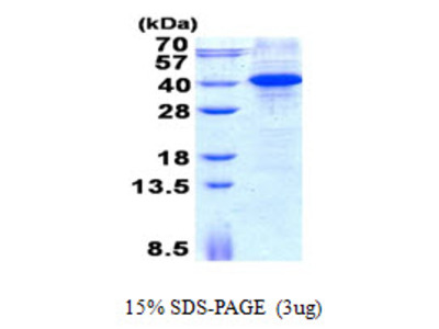 MYD88 Myeloid Differentiation Primary Response 88 Human Recombinant Protein