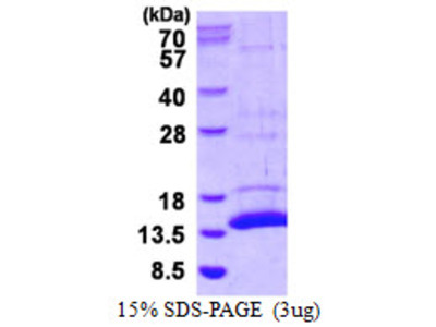 S100A15 S100 Calcium Binding Protein A15 Mouse Recombinant Protein