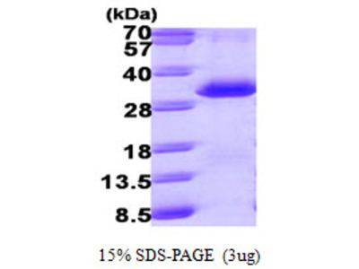 PSME1 Proteasome Activator Subunit 1 Human Recombinant Protein