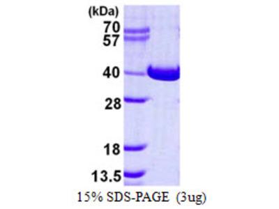 NAGK N-Acetylglucosamine Kinase Human Recombinant Protein