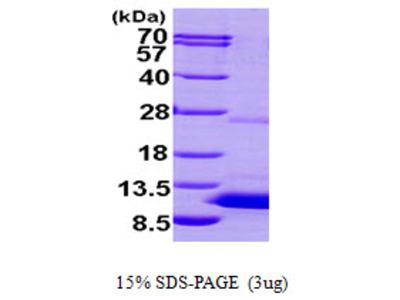 S100P S100 Calcium Binding Protein P Human Recombinant Protein