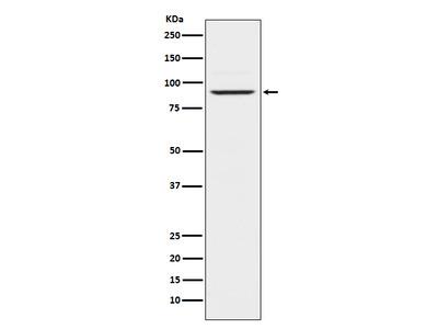 Anti-Prolactin Receptor Monoclonal Antibody