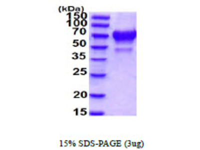 IBSP Integrin Binding Sialoprotein,Human Recombinant Protein
