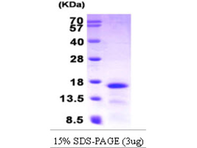 Mucosae-Associated Epithelial Chemokine Human Recombinant Protein (CCL28)