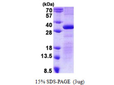 Human Delta-Sarcoglycan Recombinant Protein