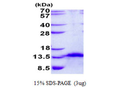 FDCSP Follicular Dendritic Cell Secreted Protein Human Recombinant Protein