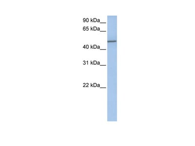 Anti-Collagen alpha-1(XXV) chain COL25A1 Antibody
