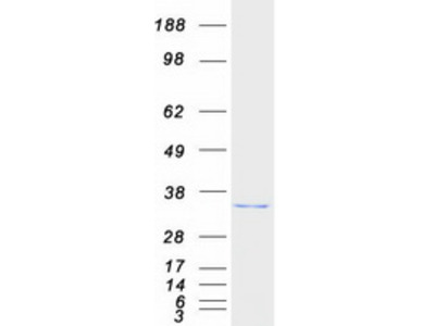 ABHD10 Abhydrolase Domain Containing 10 Human Recombinant Protein