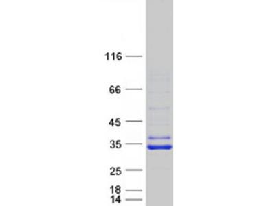 SIRT5 Sirtuin-5 Human Recombinant Protein