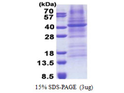 FUT3 Fucosyltransferase 3 Human Recombinant Protein
