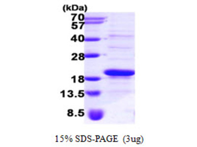 SRP14 Signal Recognition Particle 14kDa Human Recombinant Protein
