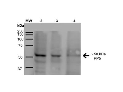 Anti-PP5 Monoclonal Antibody