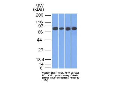 Anti-Catenin, gamma Antibody (11 E4)