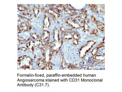 Anti-CD31 / PECAM-1 Antibody (C31.7)