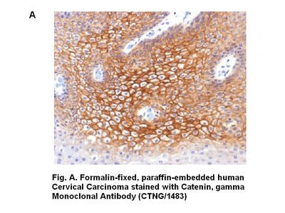 Anti-Catenin, gamma Antibody (CTNG/1483)