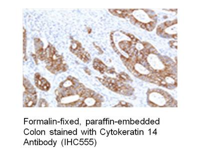Anti-Cytokeratin 14 Antibody (IHC555)