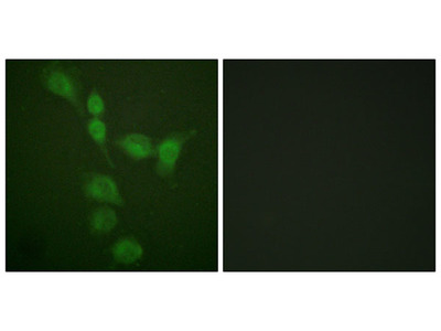 PKA alpha/beta CAT Antibody