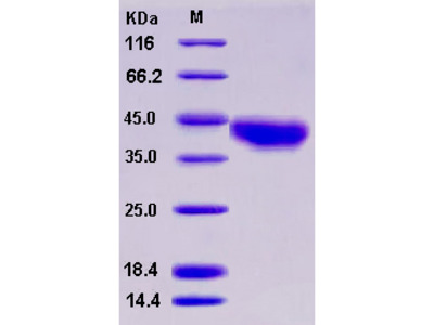 Recombinant Human JAML / AMICA Protein (His tag)