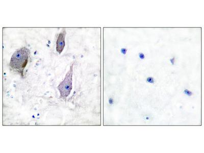 PMP22 Antibody