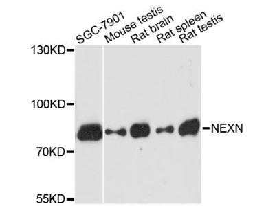 NEXN Polyclonal Antibody