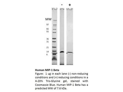 Human MIP-1b (CCL4)