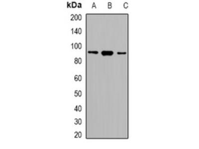 Anti-SRSF5 Antibody