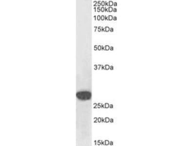 Anti-Snail homolog 1 / SNAI1 Antibody