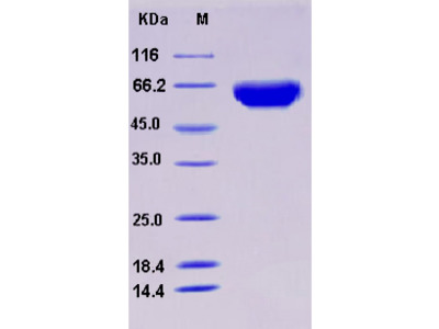 Recombinant Human ORP150 / HYOU1 / HSP12A Protein (His tag)